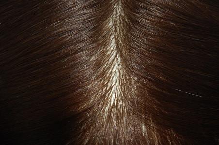 Injektion Haar System Super Thin Skin Toupet.