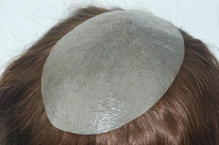 Injektion Haar System Thin Skin Toupet