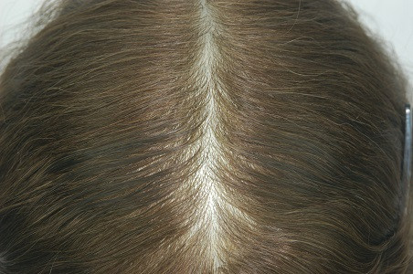 Super Thin Skin Injektion Haar System Kopfhaut