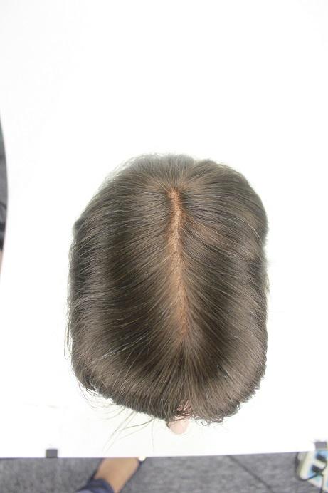 French Lace Herren Toupet Sonderanfertigung mit gebleichten Haarknoten von Oben