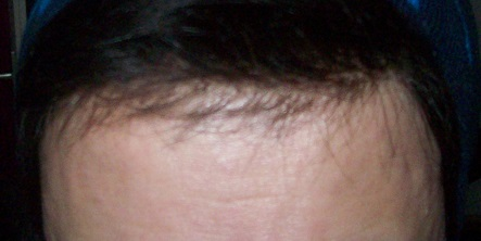 Männer Haarteil Mit feinen Babyhaar am Haaransatz